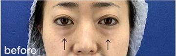 銀座長瀬クリニックの目元整形・クマ治療の症例写真