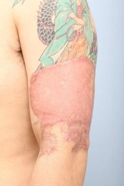 よだ形成外科クリニックのタトゥー除去(刺青・入れ墨を消す治療)の症例写真[アフター]