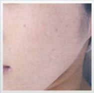 フォトフェイシャル症例30代女性の症例写真[アフター]