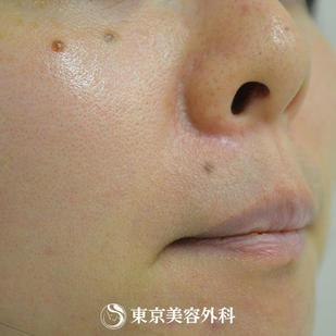 東京美容外科のホクロ除去・あざ治療・イボ治療の症例写真[アフター]