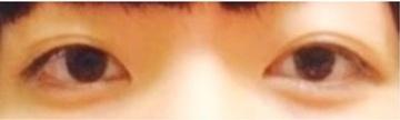 くみこクリニック 京都四条烏丸院の目・二重整形の症例写真[ビフォー]