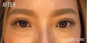 GLANZ CLINIC (グランツクリニック)の目・二重の整形の症例写真[アフター]