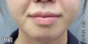 銀座みゆき通り美容外科大阪院の口もと、唇の整形の症例写真[ビフォー]
