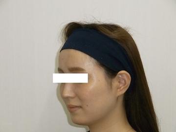 恵比寿ASクリニックの顔の整形(輪郭・顎の整形)の症例写真[アフター]