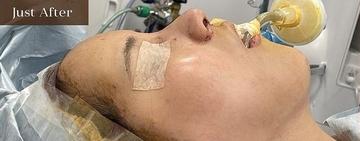 アーククリニックの鼻の整形の症例写真[アフター]