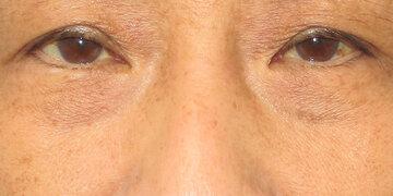 湘南美容クリニック 高崎院の目元の整形、くま治療の症例写真[ビフォー]