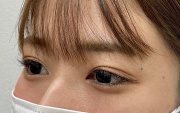 さっぽろ美容クリニック 本院の目元整形・クマ治療の症例写真[ビフォー]