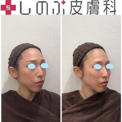 ヒアルロン酸カスタマイズ5本+鼻、涙袋の症例写真