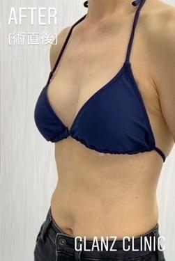GLANZ CLINIC (グランツクリニック)の豊胸手術(胸の整形)の症例写真[アフター]