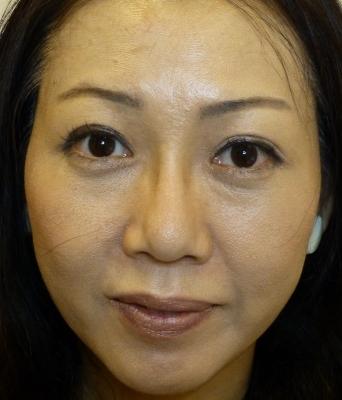 さやか美容クリニック・町田の鼻の整形の症例写真[アフター]