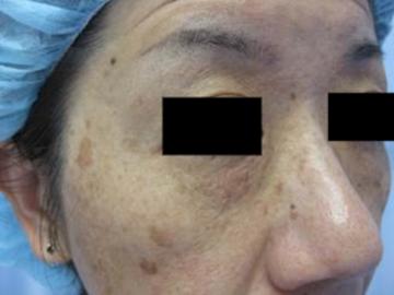 鹿児島三井中央クリニックのシミ治療(シミ取り)・肝斑・毛穴治療の症例写真[ビフォー]