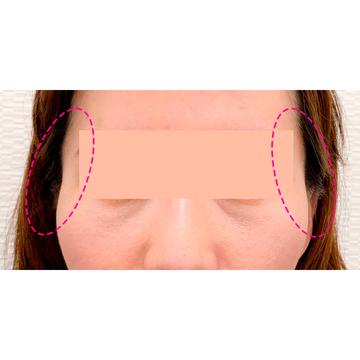 A CLINIC(エークリニック)の輪郭・顎の整形の症例写真[ビフォー]