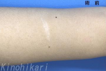 樹のひかり 形成外科・皮ふ科の傷跡治療、ケロイドの症例写真