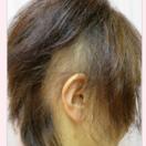 円形脱毛症の治療[ビフォー]