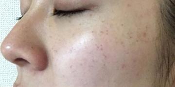 ドクター松井クリニックのシミ治療(シミ取り)・肝斑・毛穴治療の症例写真[ビフォー]