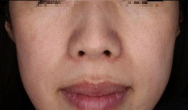赤ら顔・酒さ・にきびフォトスキンセラピーの症例写真[アフター]