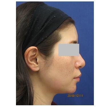 顎プロテーゼの入れ替えで理想の輪郭へ[アフター]