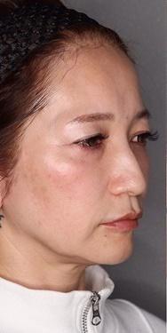 SELECT CLINIC(セレクトクリニック)の顔のしわ・たるみの整形の症例写真[ビフォー]