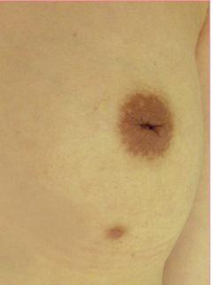 ■陥没乳頭形成術(片側)[ビフォー]