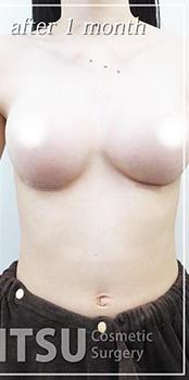 共立美容外科・歯科の症例写真[アフター]