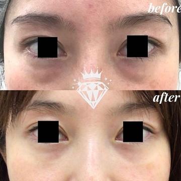 広島プルミエクリニックの目元整形・クマ治療の症例写真