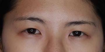 目白ポセンシアクリニックの目・二重整形の症例写真[ビフォー]