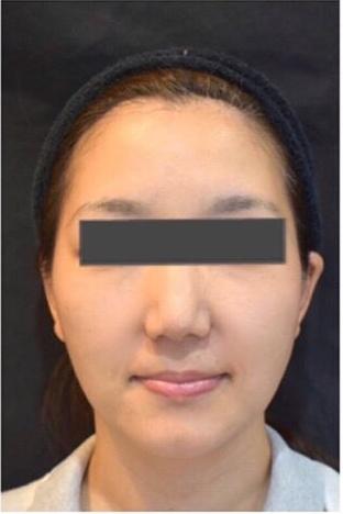 ジョウクリニックの鼻の整形の症例写真[アフター]