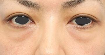 よだ形成外科クリニックの目元の整形、くま治療の症例写真[ビフォー]
