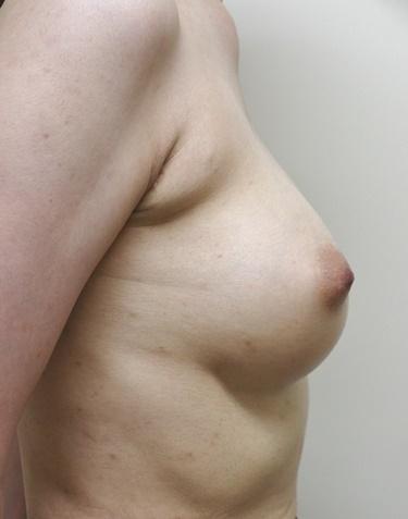 他院豊胸術後修正(ヒアルロン酸注入後)※の症例写真[アフター]