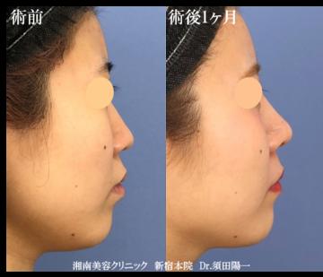 湘南美容クリニック新宿本院の鼻の整形の症例写真