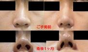 心斎橋コムロ美容外科クリニックの鼻の整形の症例写真