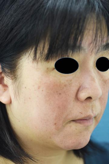 みずほクリニックのシミ治療(シミ取り)・肝斑・毛穴治療の症例写真[ビフォー]