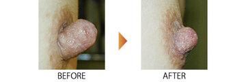 恵聖会クリニックの乳首・乳輪の整形の症例写真
