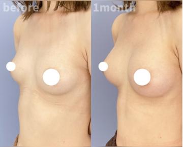 湘南美容クリニック 金沢院の豊胸・胸の整形の症例写真