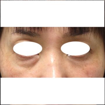 しらさぎ形成クリニックの目元整形・クマ治療の症例写真[ビフォー]