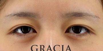 GRACIA clinic(グラシアクリニック)の目・二重の整形の症例写真[ビフォー]