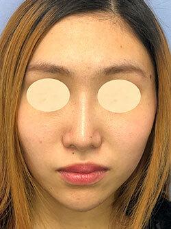 湘南美容クリニック 新潟院の鼻の整形の症例写真[アフター]