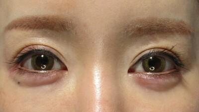 涙袋のヒアルロン酸注入で優しい目元にの症例写真[アフター]