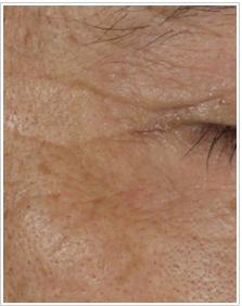 かよこ・クリニックのシワ・たるみ(照射系リフトアップ治療)の症例写真[アフター]