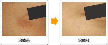 ワイズスキンケアクリニックのシミ治療(シミ取り)・肝斑・毛穴治療の症例写真