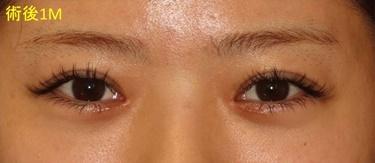 埋没重瞼と目頭切開の修正 術後1か月の経過の症例写真[アフター]