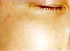 ★赤ら顔★の症例写真[アフター]