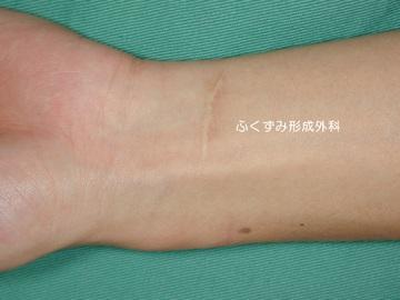 ふくずみ皮フ科形成外科の傷跡治療、ケロイドの症例写真[ビフォー]