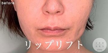 くさのたろうクリニックの口元・唇の整形の症例写真[ビフォー]