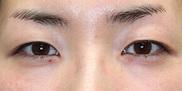 大塚美容形成外科の症例写真