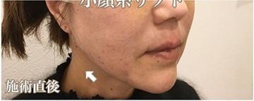 西宮SHUHEI美容クリニックの顔のしわ・たるみの整形(リフトアップ手術)の症例写真[アフター]