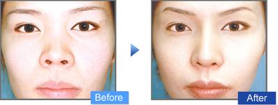 鼻翼縮小術の症例写真