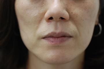 みずほクリニックの顔のしわ・たるみの整形(リフトアップ手術)の症例写真[アフター]