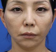 オザキクリニックLUXE新宿の顔のしわ・たるみの整形(リフトアップ手術)の症例写真[アフター]