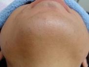 ティアラクリニック川越院の医療レーザー脱毛の症例写真[アフター]